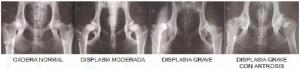 Dislapsia de caderas - Radiografías
